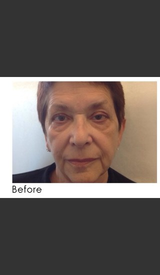 Before Photo for Radiesse and Restylane Filler Treatment - Annie Chiu, MD - Prejuvenation
