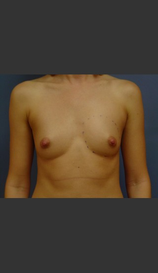 Before Photo for Breast Augmentation - Michael S. Beckenstein, MD - Prejuvenation