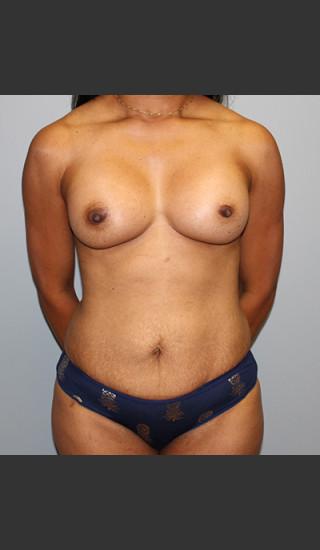 After Photo for Mommy Makeover Case #1 - Bryan J. Correa, MD - Prejuvenation