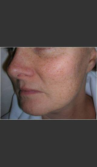 Before Photo for Sun Damage and Acne Scarring - Christopher B. Zachary, MD - Prejuvenation