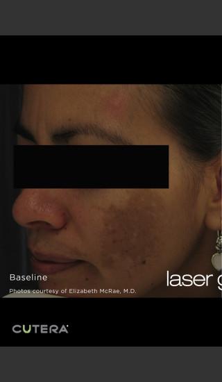 Before Photo for Melasma Before & After Photo after Laser Genesis -  - Prejuvenation