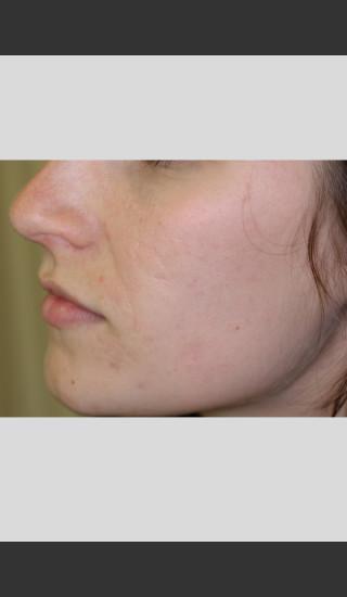 After Photo for Sublative Rejuvenation Treatment -  - Prejuvenation