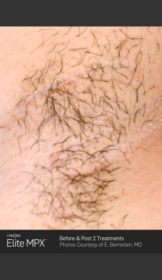 Before Photo for Hair Removal of Under Arms with Elite MPX -  - Prejuvenation