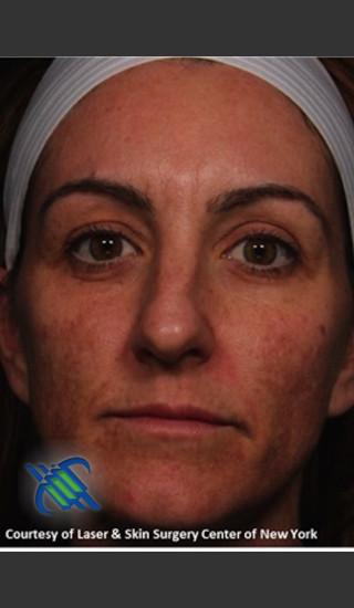 Before Photo for Full Face Skin Rejuvenation - Roy G. Geronemus, M.D. - Prejuvenation