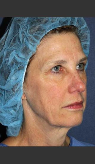 Before Photo for Treatment of Sun Damage - Mitchel P. Goldman M.D. - Prejuvenation