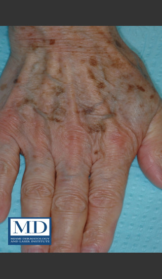 Before Photo for Brown Spots on Hands Treatment 113 - Jill S. Waibel, MD - Prejuvenation