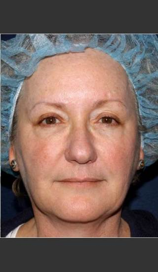 After Photo for Treatment of Sun Damage & Flushing - Kimberly J. Butterwick M.D. - Prejuvenation