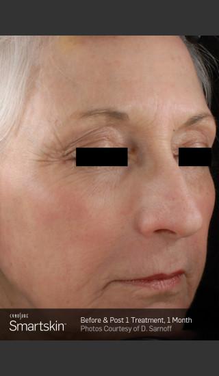 After Photo for Wrinkle Reduction With SmartSkin Resurfacing -  - Prejuvenation