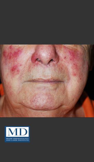 Before Photo for Rosacea Treatment 102 - Jill S. Waibel, MD - Prejuvenation