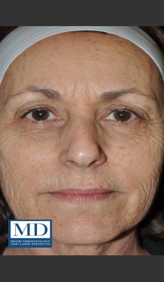 Before Photo for Wrinkle Treatment 124 - Jill S. Waibel, MD - Prejuvenation
