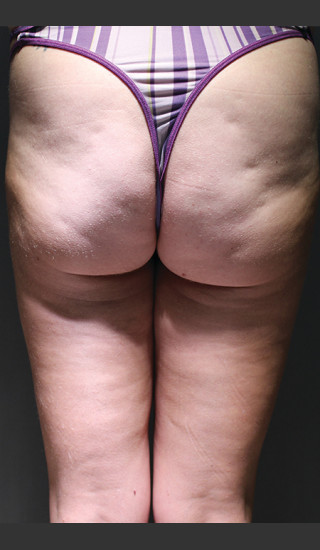 Before Photo for Cellfina Case #1 - South Coast Plastic Surgery - Prejuvenation