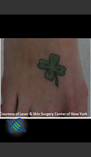 Before Photo for Laser Treatment of Foot Tattoo - Roy G. Geronemus, M.D. - Prejuvenation