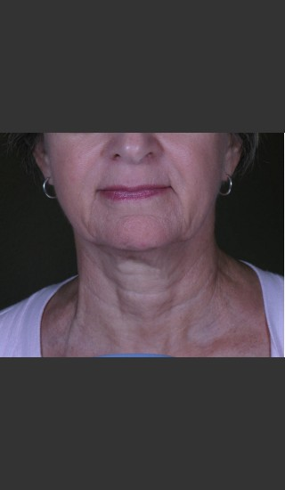 Before Photo for 3DEEP Neck Tightening -  - Prejuvenation