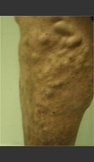 Before Photo for Treatment of Leg Veins -  - Prejuvenation