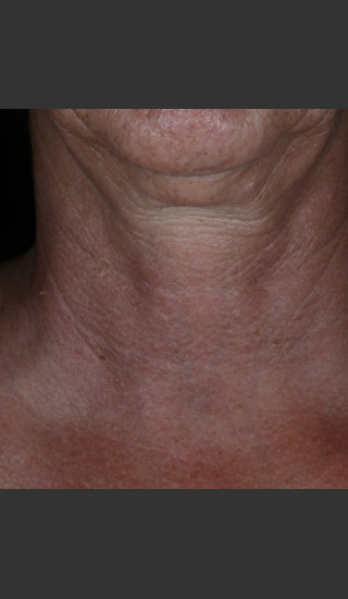 Before Photo for Alastin Skincare Restorative Neck Complex with TriHex Technology® -  - Prejuvenation