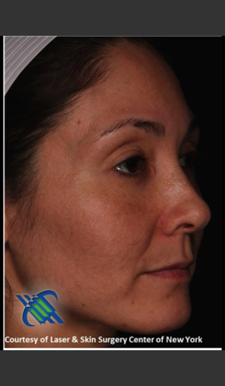 After Photo for Female Full Face Fraxel Treatment  - Roy G. Geronemus, M.D. - Prejuvenation