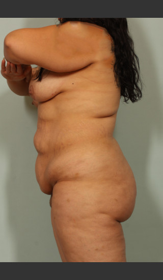 Before Photo for Tummy Tuck and Liposuction - El Paso Cosmetic Surgery - Prejuvenation