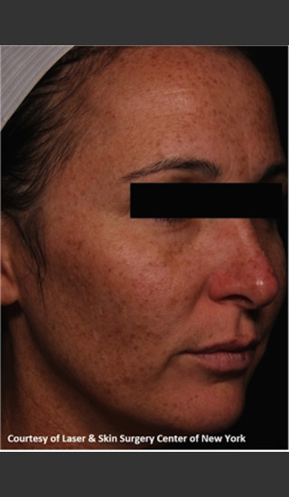 Before Photo for Facial Skin Rejuvenation with Clear and Brillant Permea - Roy G. Geronemus, M.D. - Prejuvenation