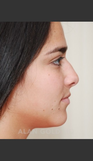 Before Photo for Rhinoplasty 1676 Side View - Alan Gold MD - Prejuvenation