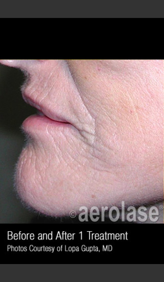 After Photo for Treatment of Wrinkles, Tone and Texture #341 -  - Prejuvenation