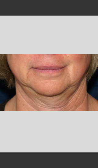 Before Photo for Profound Lower Face Lift Treatment -  - Prejuvenation
