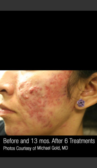 Before Photo for #301 - Treatment of Cystic Acne -  - Prejuvenation