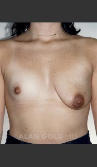 Before Photo for Asymmetrical Breast 470 - Alan Gold MD - Prejuvenation