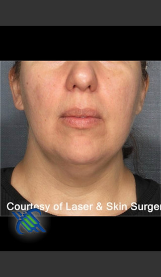 Before Photo for Laser Liposuction Submental Fat Treatment - Roy G. Geronemus, M.D. - Prejuvenation