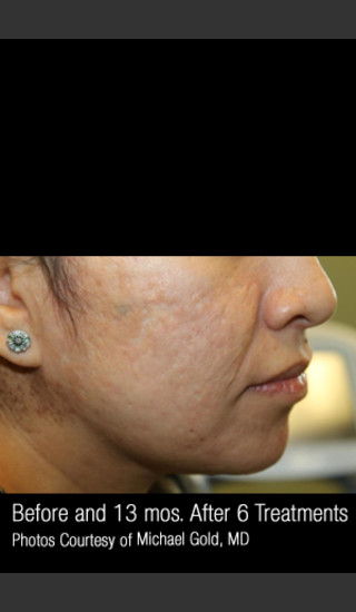 After Photo for Treatment of Cystic Acne #302 -  - Prejuvenation
