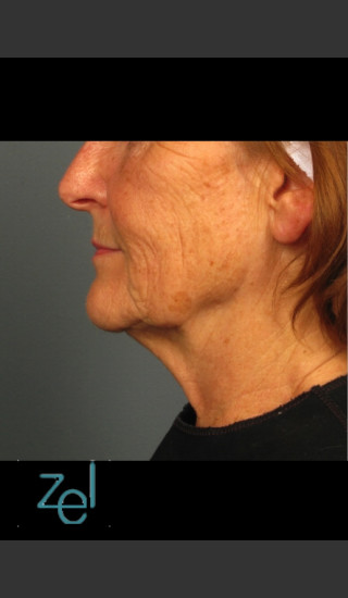 Before Photo for Ultherapy on Mid Face with Dermal Fillers - Brian D. Zelickson, M.D. - Prejuvenation