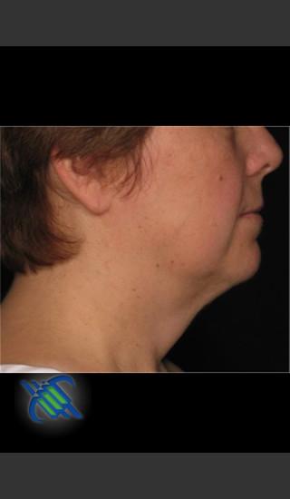 After Photo for Laser Liposuction Left Side of Neck - Roy G. Geronemus, M.D. - Prejuvenation