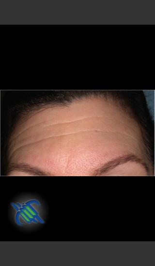 Before Photo for Laser Treatment of Forehead Wrinkles - Roy G. Geronemus, M.D. - Prejuvenation
