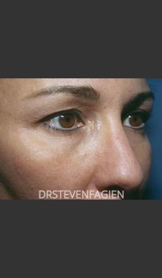 Before Photo for Blepharoplasty - Patient 1 - Steven Fagien, MD - Prejuvenation