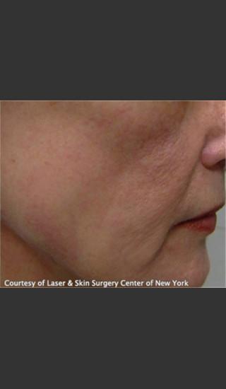 After Photo for Treatment of Facial Blood Vessels -  - Prejuvenation