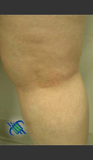 After Photo for Treatment of Leg Veins - Roy G. Geronemus, M.D. - Prejuvenation