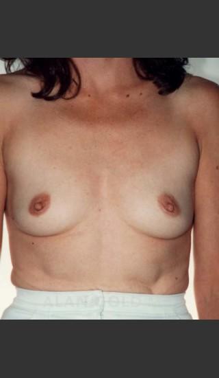 Before Photo for Breast Augmentation 582 - Alan Gold MD - Prejuvenation