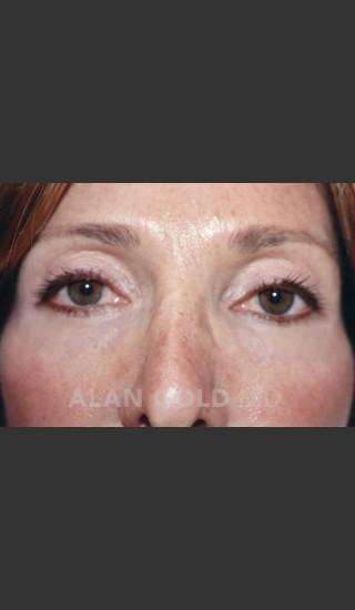 After Photo for Blepharoplasty 1004 - Alan Gold MD - Prejuvenation