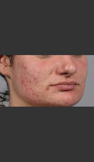 Before Photo for 3DEEP Intensif Microneedling #2 -  - Prejuvenation