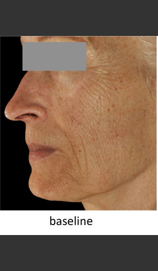 Before Photo for DefenAge Skincare Clinical Power Trio - Amy Forman Taub, MD - Prejuvenation