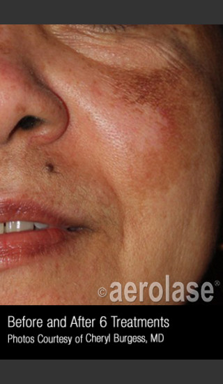 After Photo for Treatment of Melasma #319 -  - Prejuvenation