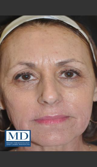 After Photo for Wrinkle Treatment 124 - Jill S. Waibel, MD - Prejuvenation