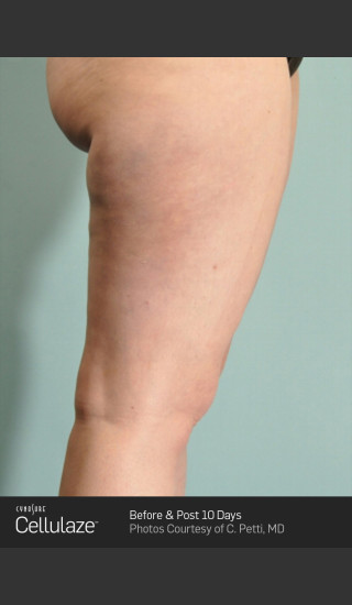 After Photo for Cellulaze Cellulite Treatment of the Thighs -  - Prejuvenation