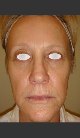 Before Photo for Rhytids (wrinkles) premature aging. - Christopher B. Zachary, MD - Prejuvenation