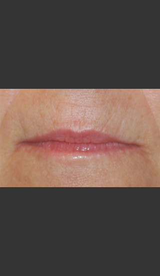 Before Photo for Treatment of Perioral Wrinkles - Roy G. Geronemus, M.D. - Prejuvenation