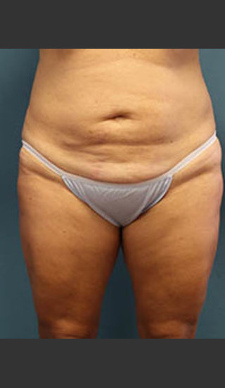 Before Photo for Before and After Tummy Tuck - Arthur Handal - Prejuvenation