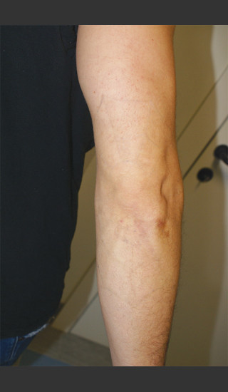 After Photo for Quanta Q-Plus C Laser Tattoo Removal #71 -  - Prejuvenation