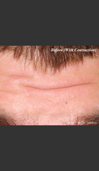 Before Photo for Treatment of Forehead Creases with Botox - Ron M. Shelton, M.D. - Prejuvenation