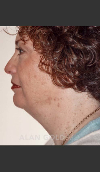 Before Photo for Liposuction of Neck 89 Side View - Alan Gold MD - Prejuvenation