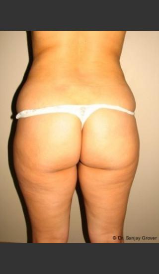 Before Photo for Butt Augmentation - Sanjay Grover MD FACS - Prejuvenation