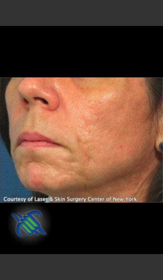 After Photo for Treatment of Lower Face Acne Scarring - Roy G. Geronemus, M.D. - Prejuvenation
